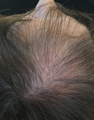 PRP Hair Restoration Results - Before