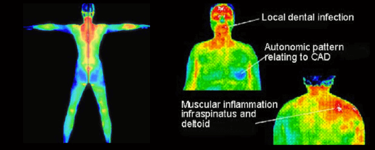 Full Body Thermography Portsmouth
